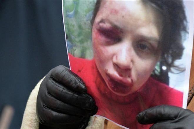 Татьяна Черновол после нападения. Фото: Обозреватель