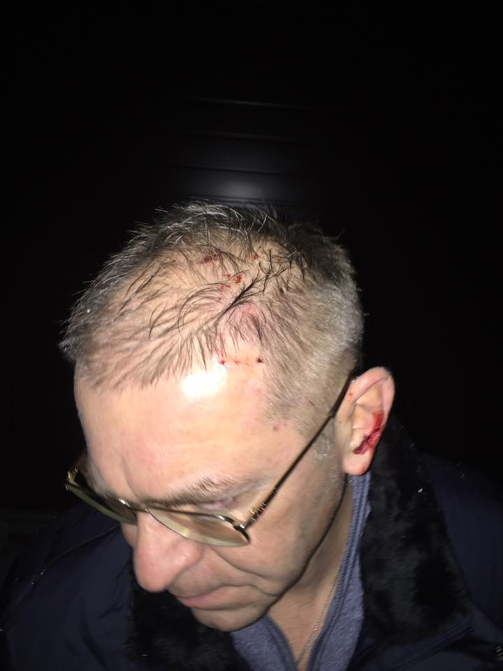 Пашинский получил по голове от Химикуса. Фото Facebook/Сергій Пашинський