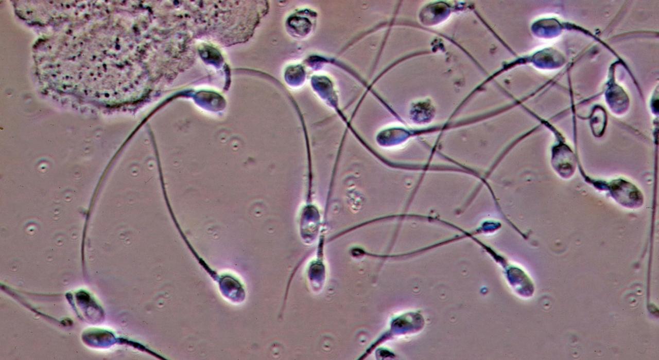 Сперма воздух