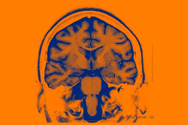 Импланты головного мозга используются для лечения эпилепсии и болезни Паркинсона / Источник: BSIP/UIG/Getty
