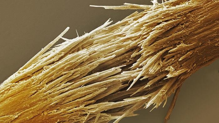 Поврежденный волос под растровым электронным микроскопом. Источник: Power and Syred/Science