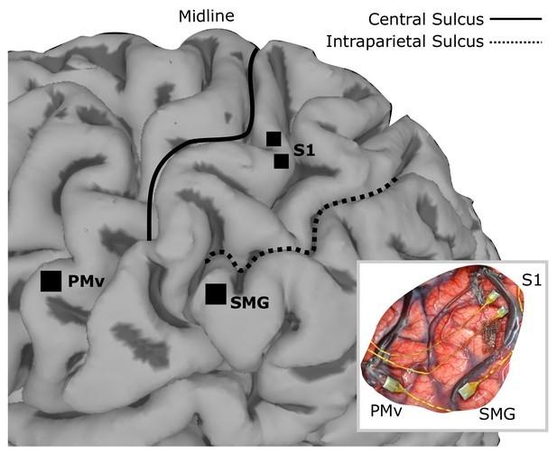 Так выглядят микроэлектроды, имплантированные в мозг / eLife