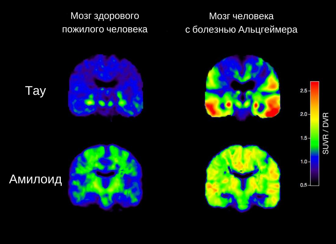 ПЭТ-сканирование мозга здоровых людей и пациентов с болезнью Альцгеймера показывает разные уровни тау-белков и бета-амилоидов / UC Berkeley, 2016