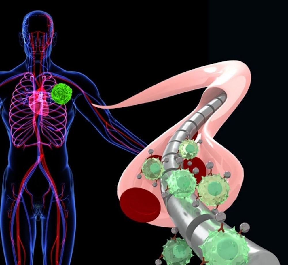 Магнитная проволока привлекает свободно плавающие опухолевые клетки, намагниченные специально сконструированными наночастицами / Sam Gambhir